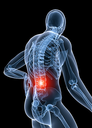 back pain hunter valley raymond terrace osteopathic treatment